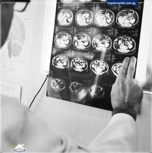 خطورة ادمان المخدرات على اجزاء المخ