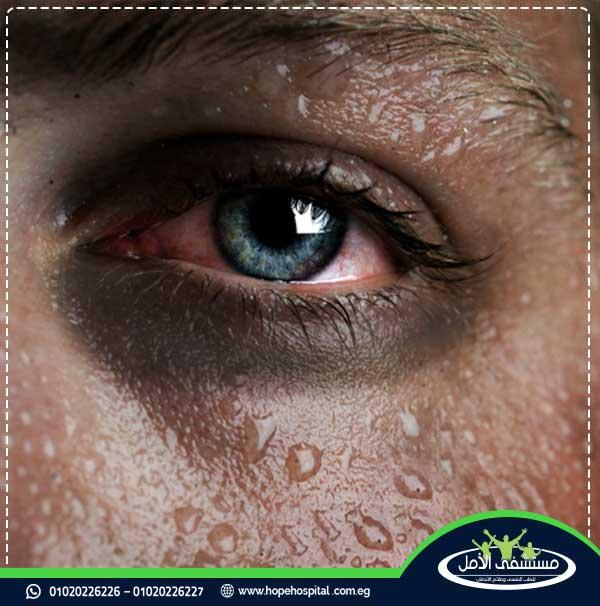 اعراض انسحاب بودرة الهيروين