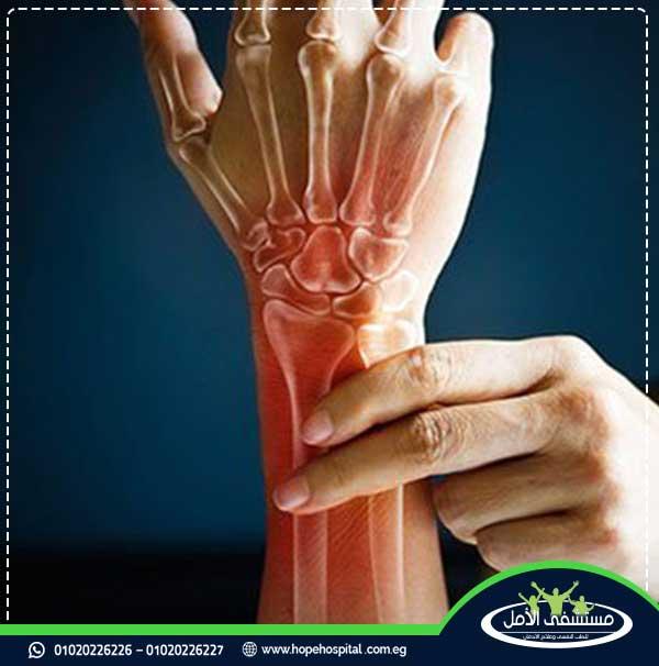 حبوب مسكادول للعضلات والمفاصل